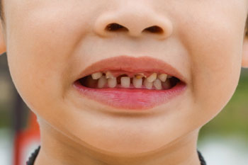 Council call for action over number of operations to remove rotten teeth in children image
