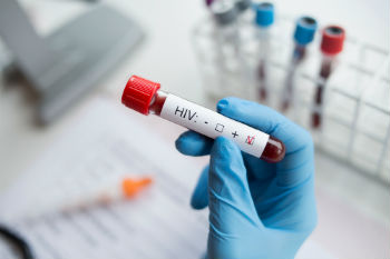 London boroughs welcome 'substantial progress' in reducing HIV image
