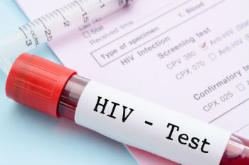 London councils agree to 4,000 extra places on HIV trial image