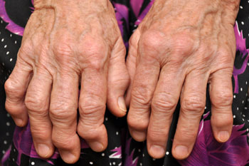One in four councils failing to meet needs of people with arthritis image