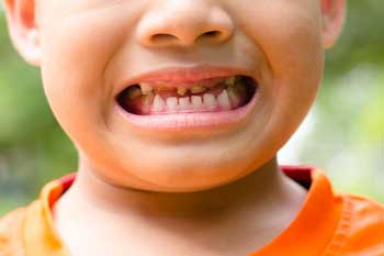 Over 140 children a day are having teeth removed, health body finds image